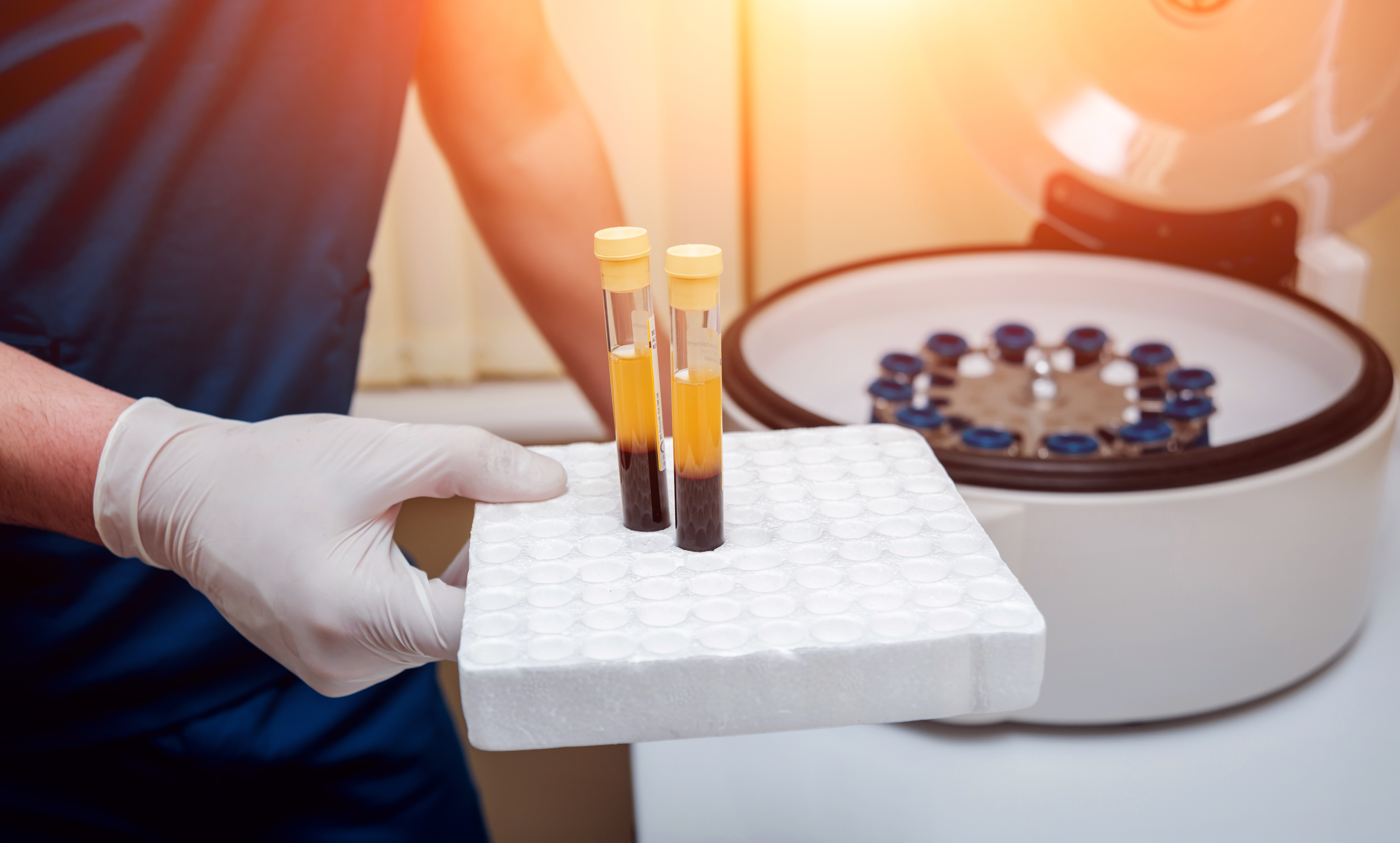 Why Choose Platelet Rich Plasma (PRP)?