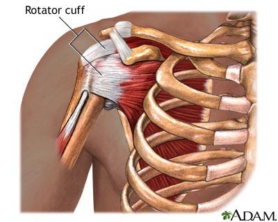 Rotator Cuff Injury and Regenerative Therapy